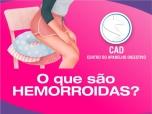 Hemorroidas: o que você precisa saber para prevenir e tratar?