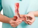 Qual o tratamento indicado para a Doença Do Refluxo Gastroesofágico (DRGE)